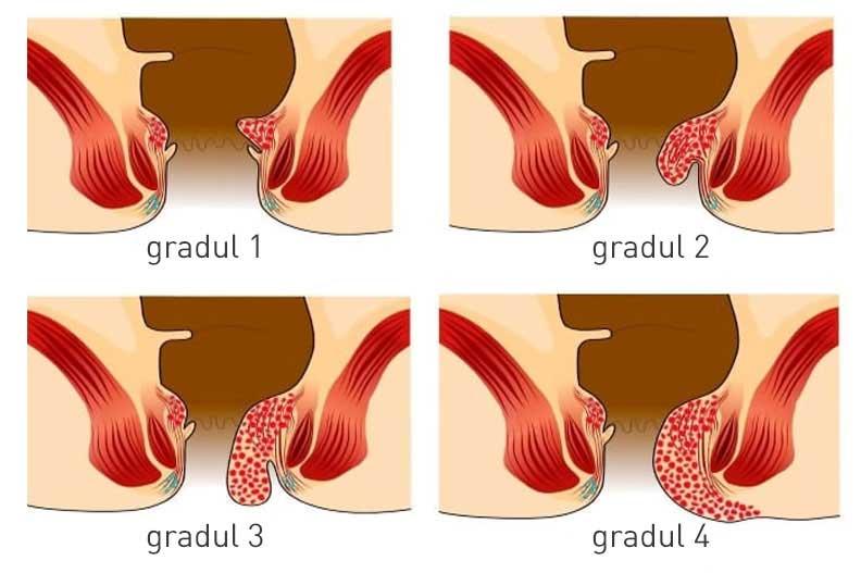 ce sunt hemoroizii si cum se trateaza
