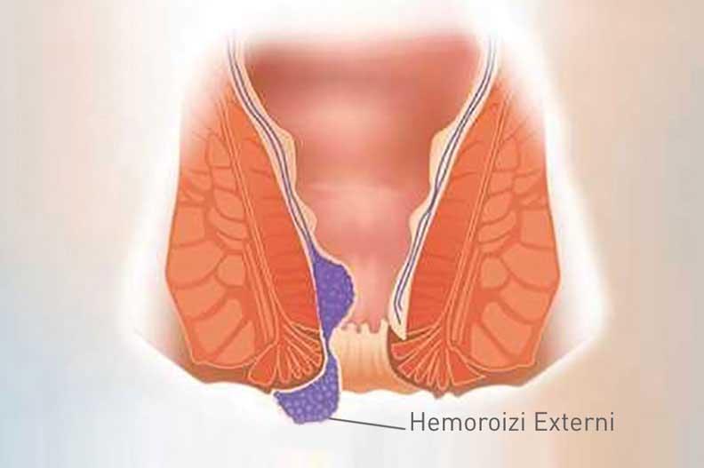 tratamente pentru hemoroizi externi