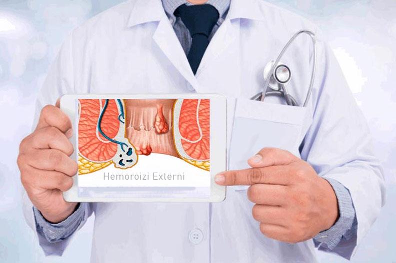 tratament hemoroizi externi