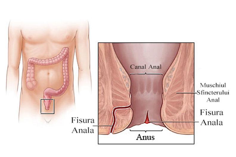 simptome si tratament pentru fisuri anale