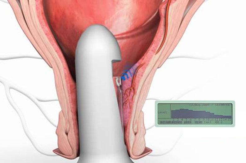 tratament hemoroizi trombozati